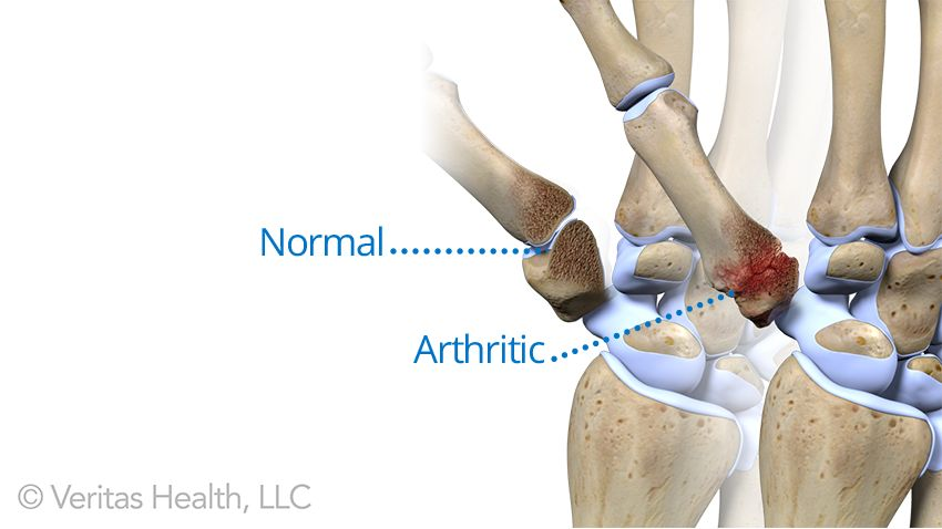 Does cracking your joints give you arthritis