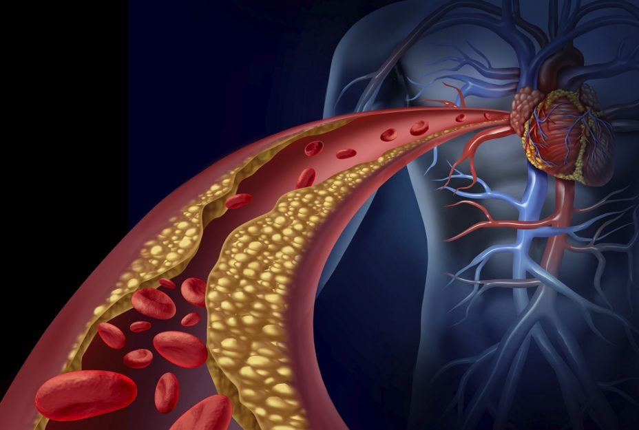 Research shows that calcium supplements increase the risk of heart disease